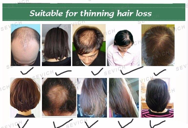 espessador de cabelo mais completo queda de cabelo, 10 cores