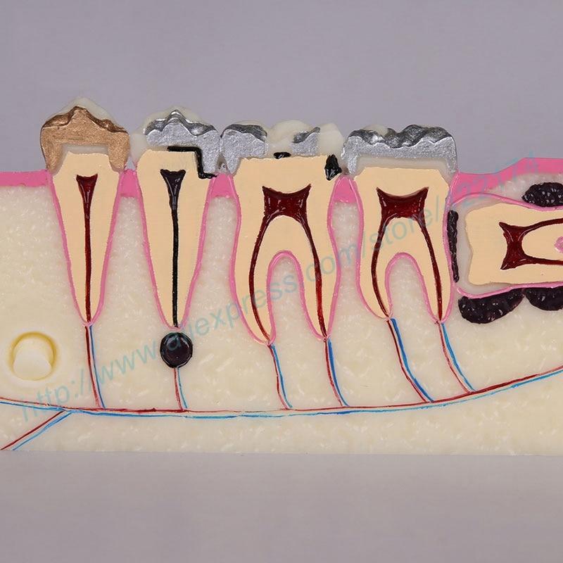 Molar sección Estudio dental diente dientes modelo anatómico ...