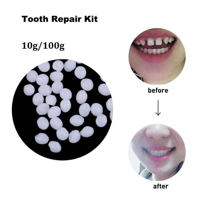 10g/100g Denture Solid Glue Oral Care Dental Restoration Temporary Tooth Repair Kit Teeth And Gaps FalseTeeth Adhesive Tool