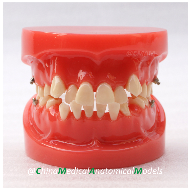 13018 DH201 Dentist Gift Oral Dental Orthodontic Model, China Medical Anatomical Model dh202 2 dentist education oral dental ortho metal and ceramic model china medical anatomical model