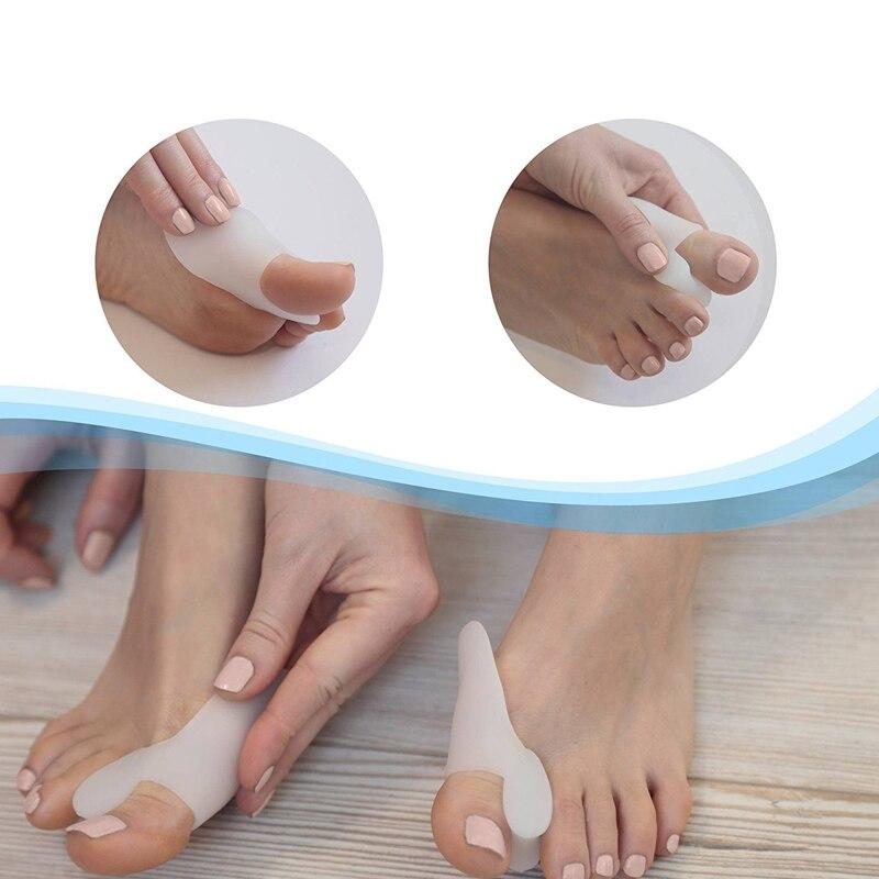 Tcare  1Pair Silicone Gel Hallux Valgus Relief Bunion Corrector and Bunion Relief Gel Toe Protectors / Toe Separators Bunion Pad 2