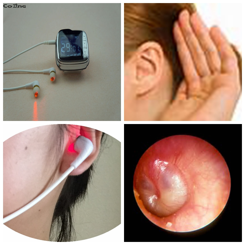 media for education in egypt Otitis media laser uses in medicine laser light therapy for hair blood pressure monitor