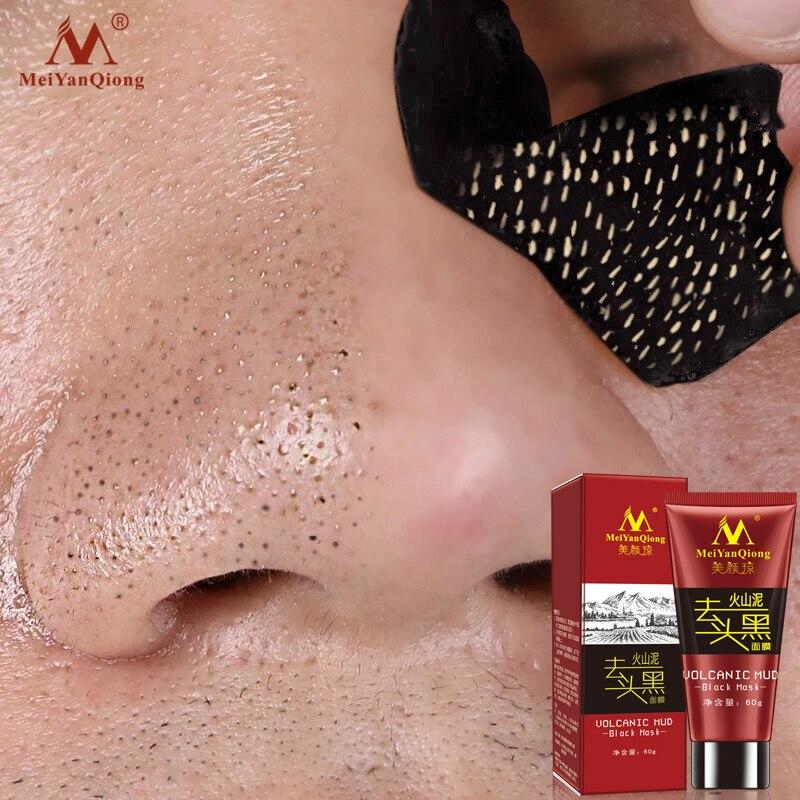 Vulkanischen Schlamm Schwarz Maske Gesicht Pflege Akne Mitesser Entfernung Behandlung Bleaching Feuchtigkeitsspendende Hautpflege Schälen Maske Anti-Aging-Creme