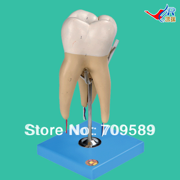 Molar Model with 3 Root  , Molar Teeth Model the teeth with root canal students to practice root canal preparation and filling actually