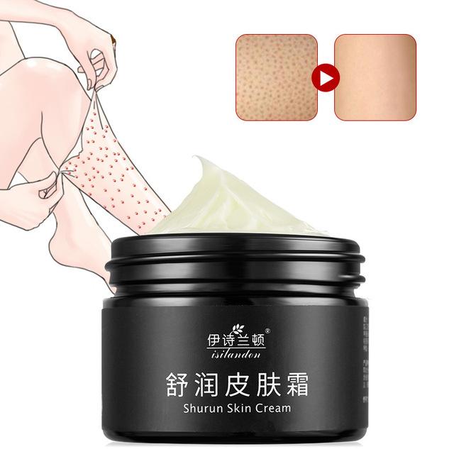 Chinese Medicine Chicken Skin Whitening Moisturizing Body Cream