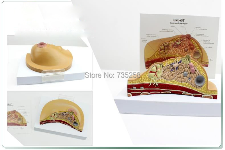 Breast Lesions Anatomical Structure Model,Breast Pathological Lesion of Doctor-Patient Communication Model skin model dermatology doctor patient communication model beauty microscopic skin anatomical human model