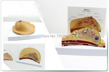 Breast Lesions Anatomical Structure Model,Breast Pathological Lesion of Doctor-Patient Communication Model
