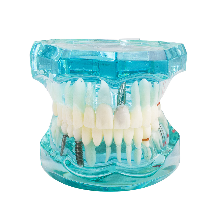 Light Blue Promotion Dental Study Tooth Transparent Adult Pathological Teeth Model Dental Lab Equipment Dentist Teaching