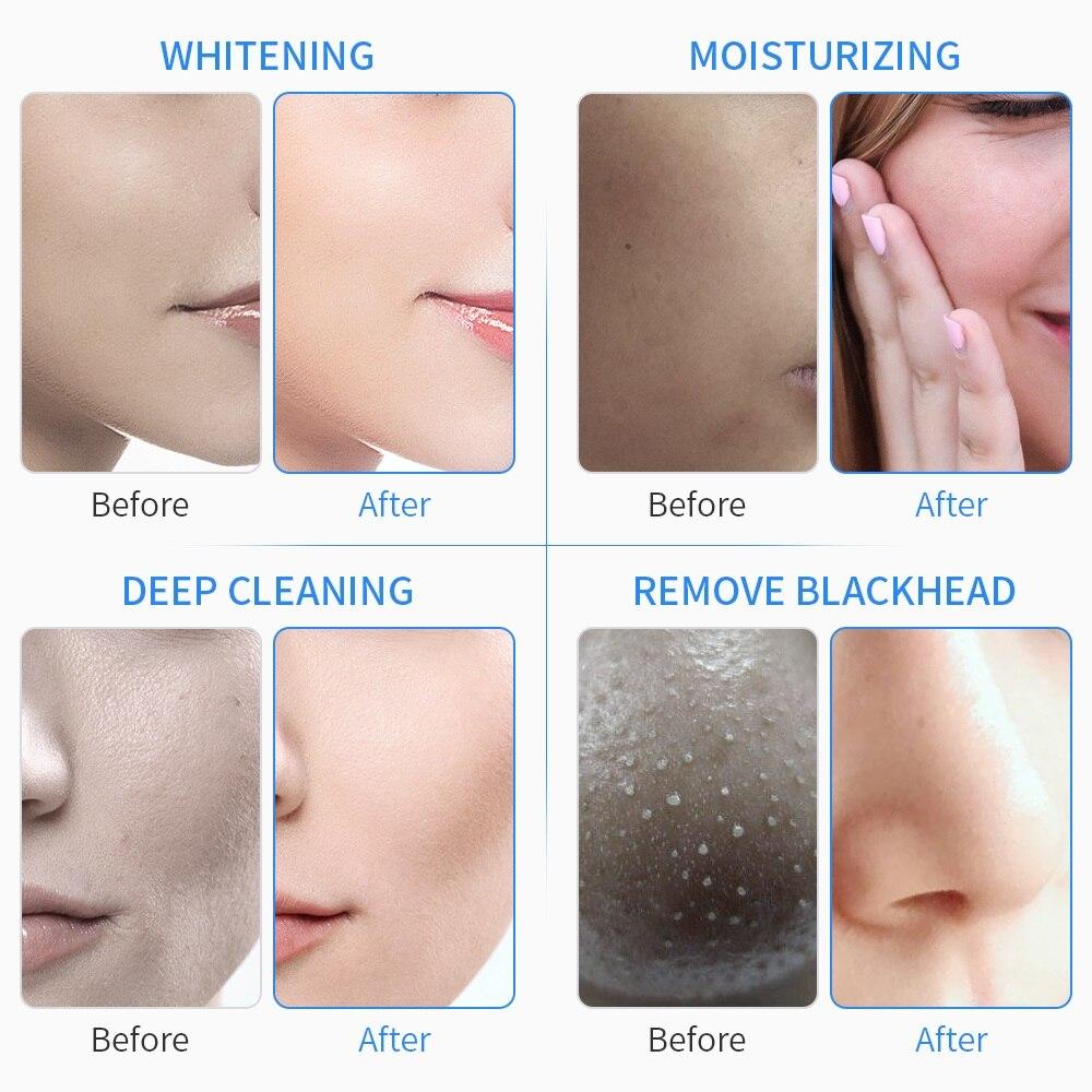 6 In 1 Wasser Sauerstoff Jet Aqua Peeling Hydra Schönheit Gesichts Haut Tief Reinigung Maschine Professionelle Hydro Dermabrasion SPA Salon - 6