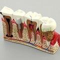 2017 New Arrival Cárie Anatomia Modelo Odontologia Modelo Dente Dentista Comunicação Com O Paciente Ricos Detalhes de Equipamentos Auxiliares de Ensino