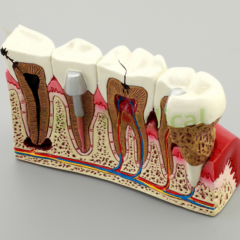 New Arrival Caries Tooth Model Dentist Patient Communication Anatomy Model Dentistry Rich Details Teaching Aids Equipment soarday endodontic restoration model teaching practice dentist patient communication model odontologia dentistry