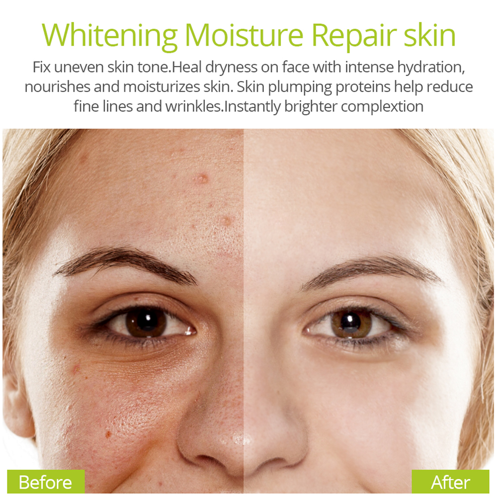 VIBRANT GLAMOUR Vitamin C Face Serum Anti acne aloe Whitening essence Hyaluronic Acid liquid Fade Dark Spots Skin care in Serum from Beauty Health
