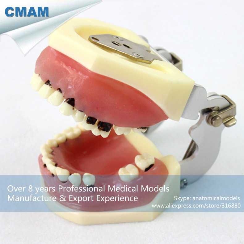 12610 CMAM-DENTAL28 Oral Flap Surgery Severe Periodontal Disease Model , Medical Science Educational Teaching Anatomical Models dental pathology model anatomical model teeth model dental caries periodontal disease demonstration model gasen den050