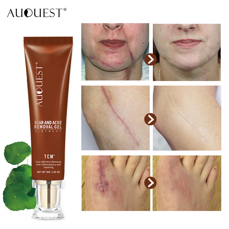 Auquest Scar Remover Gel For Men Women Anti Aging Lotion Acne Scar
