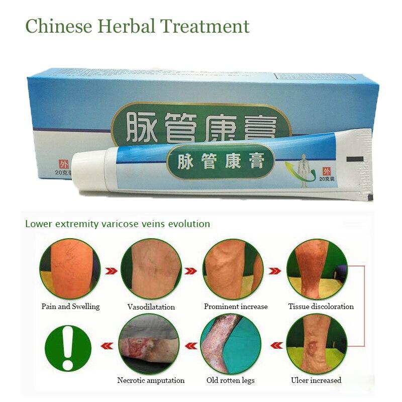 Varicose Veins Ointment Vasculitis Treatment Phlebitis Angiitis Inflammation Blood Vessel Rotten Legs Varicose Veins Cream