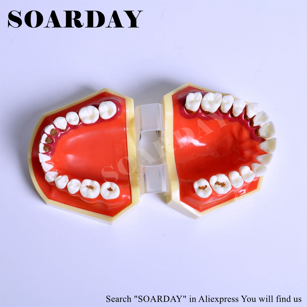 Periodontal Disease Model Tartar Scaling Model Gingival Recession Hard Gums Dentist Communication Odontologia Teaching Model soarday endodontic restoration model teaching practice dentist patient communication model odontologia dentistry
