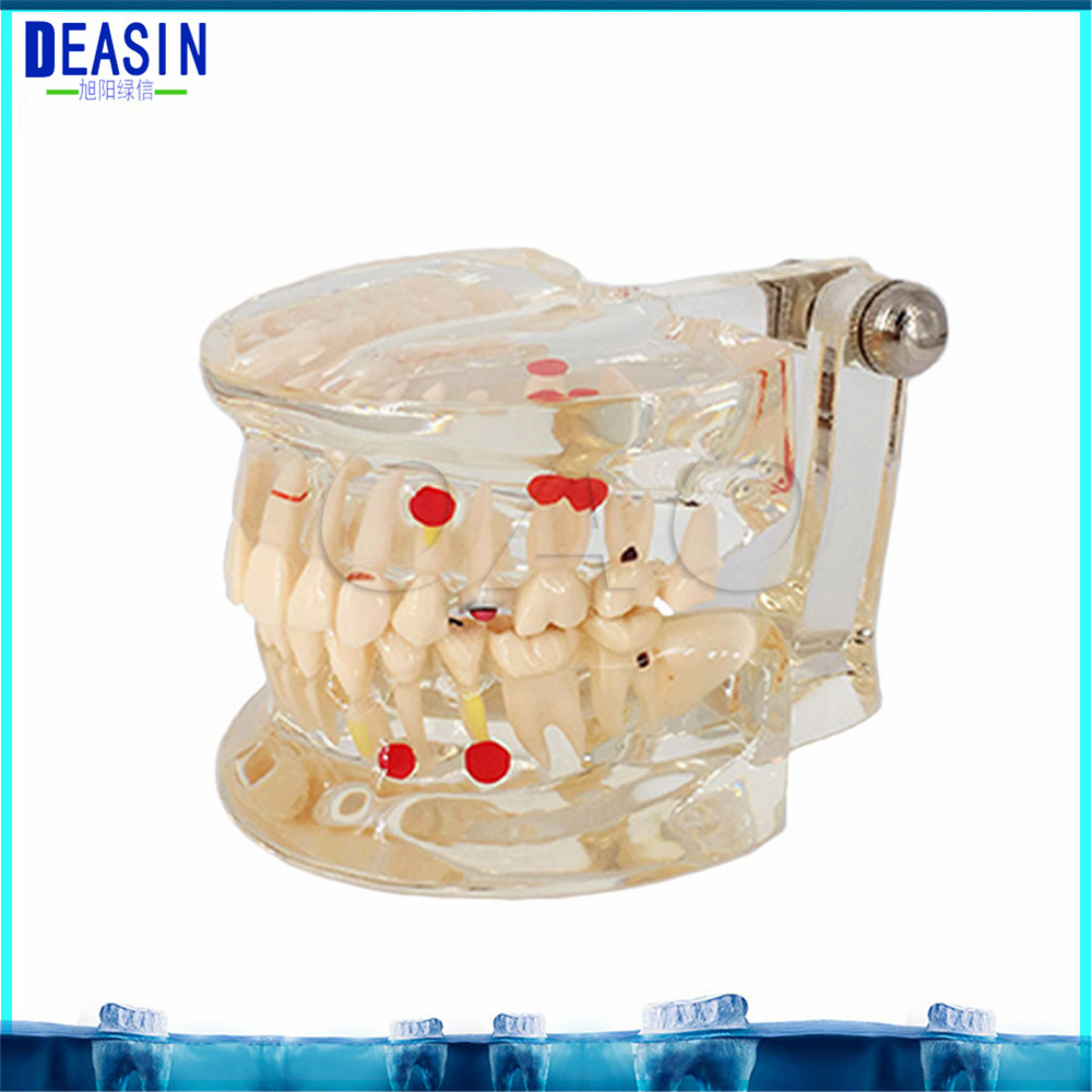 2018 DEASIN Dental Pathological Teeth Implant Model Teaching Teeth Model & Restoration Bridge Tooth Dental Implant Teeth soarday 1 piece 2 times dental pathological model implant bridge crown treatment oral teaching model