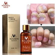 Лечение грибковых ногтей эссенция для ногтей и ног отбеливание пальцев ног удаление грибка ног Уход за ногтями эфирное масло