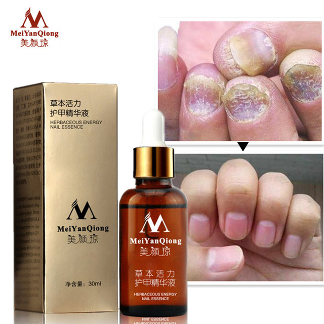 Fungal Nail Treatment Essence Nail and Foot Whitening Toe Nail Fungus Removal Feet Nail Care Essential oil