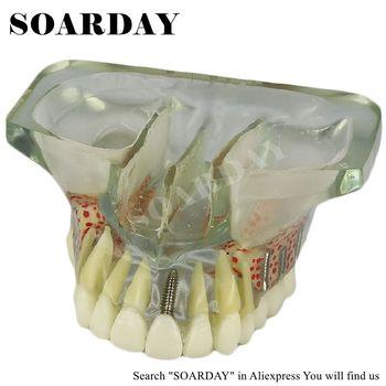SOARDAY שיניים שתל דגם עם 6 Pcs ציפורני שתל למלמדים מחקר (נשלף) שיני שן odontologia