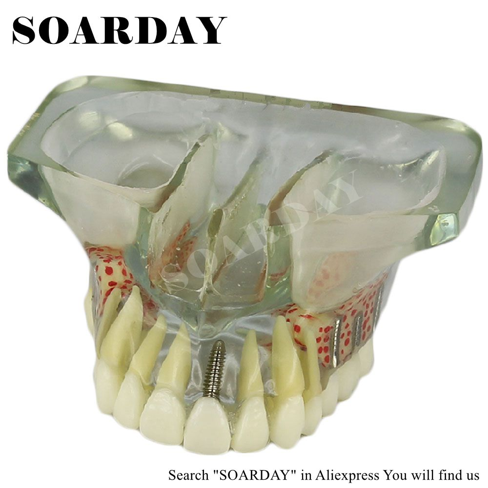 SOARDAY dental implant model with 6 Pcs Implant nails for study teach (Removable) tooth teeth model odontologia attachments retaining implant overdentures