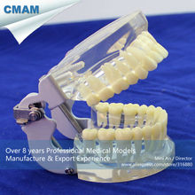 CMAM-DENTAL12 Transparent Jaw Model with Teeth for Self Brushing Educaion