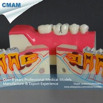 12591 / Dental Tissue Oral Teeth Study Model Dentist Patient Molar