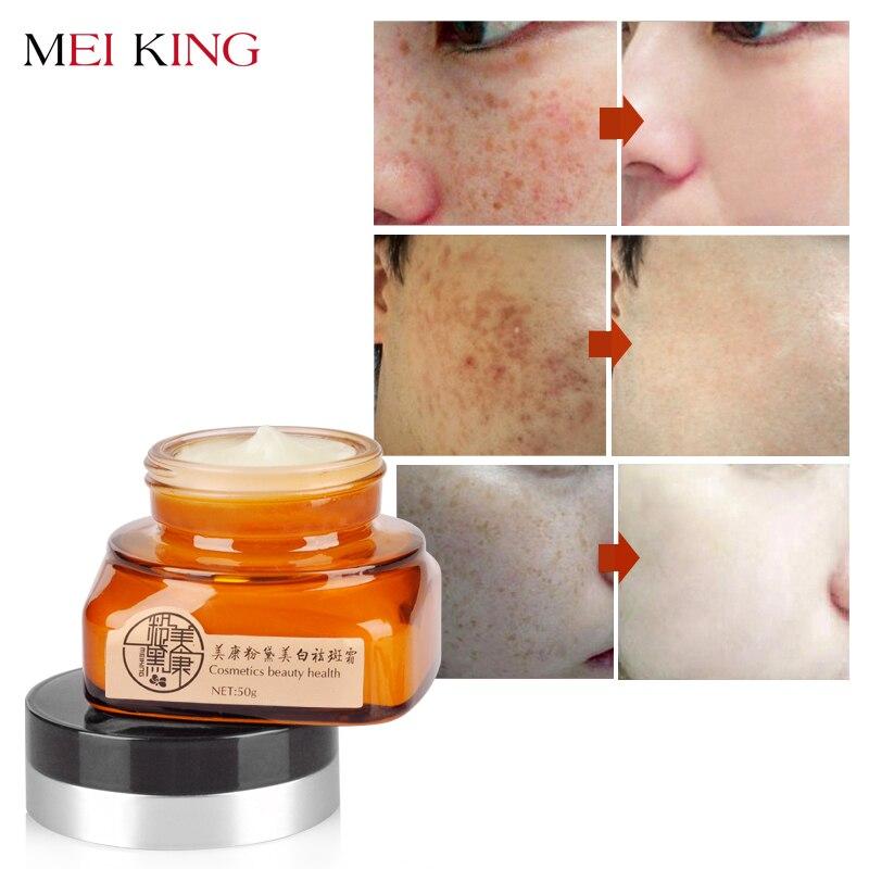 MEIKING Gesicht Creme Hautpflege Entfernen Sommersprossen Tag Creme Hautpflege Bleichen Aufhellung Entfernen Gesichts Feuchtigkeits Bleaching Creme