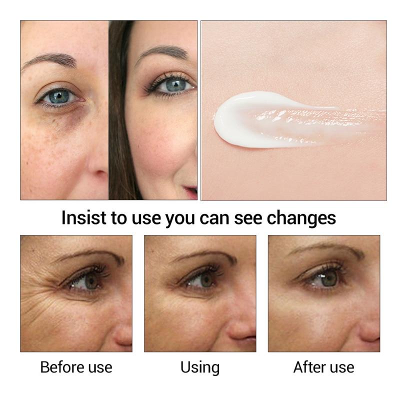 Efero Anti Aging Wrinkles Eye Cream Hyaluronic Acid Gel Whitening