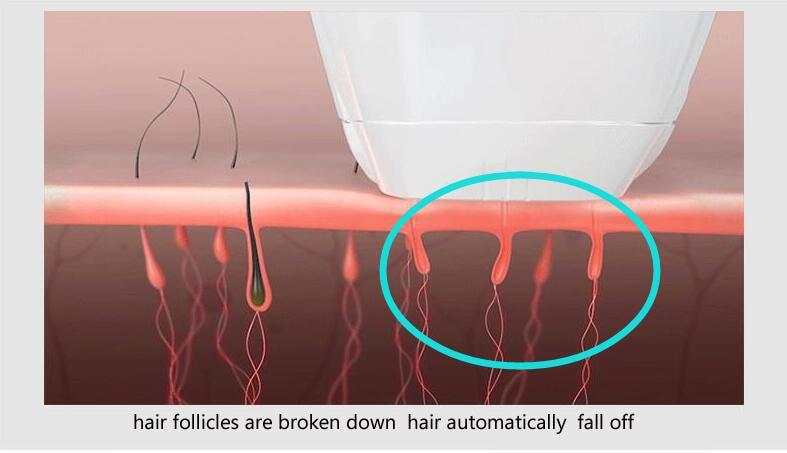 Ontharen Met Licht : Nieuwe huis houden ontharende laser mini haar epilator permanente