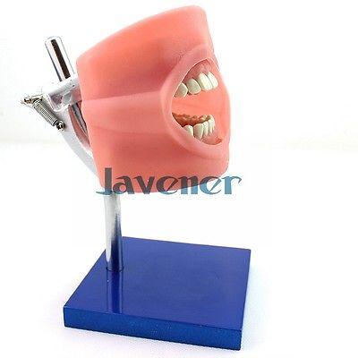 Dental Simulated Head Model Teeth Model Teaching Model High Quality soarday dental endodontic restoration model teaching communication model pathological display dental caries