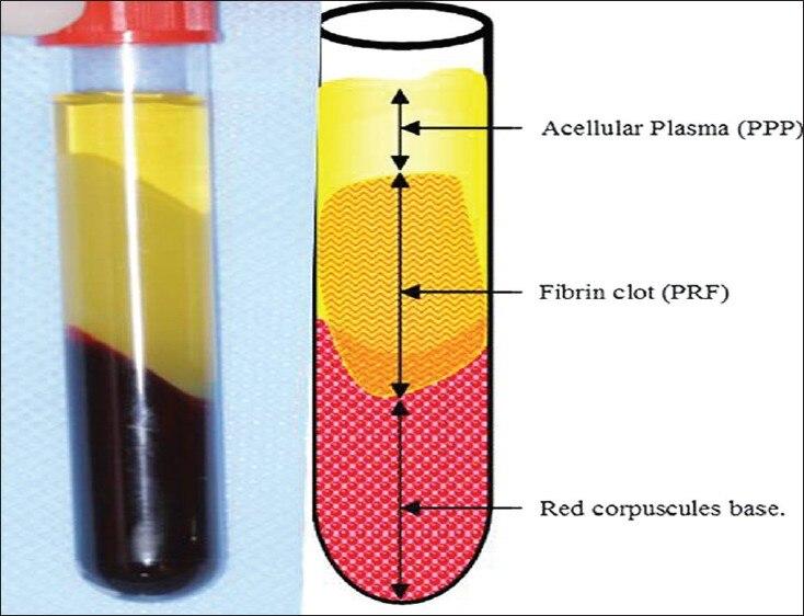 Wirówka z fibryną o wysokiej zawartości płytek krwi, probówka - Hygiena jamy ustnej - Zdjęcie 5