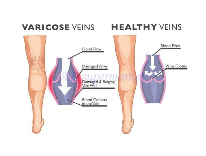 varicoză picioare de om matern cu vene varicoase