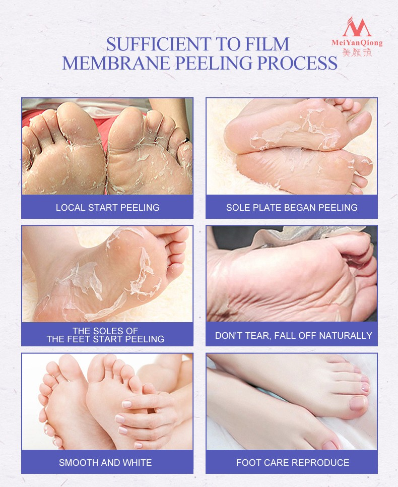 Remover a pele morta esfoliante pé máscara
