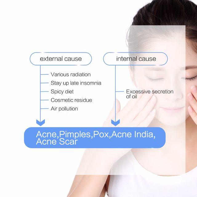 insomnia and facial creams