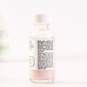 Image 4 - Một hiệu quả Điều Trị Mụn Trứng Cá BAN ĐẦU Mario Badescu Khô Lotion 29 ml Chống Mụn Trứng Cá Huyết Thanh Mụn Blemish Loại Bỏ
