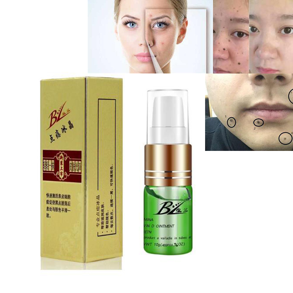 mole-skin-tag-repair-solution-painless-mole-skin-dark-spot-repair-face-wart-tag-freckle-repair-cream-oil-d079