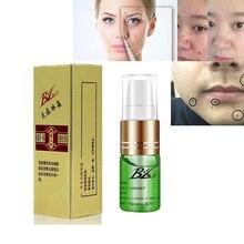 Mole & Skin Tag Repair Solution Painless Dark Spot Face Wart Freckle Cream Oil D079