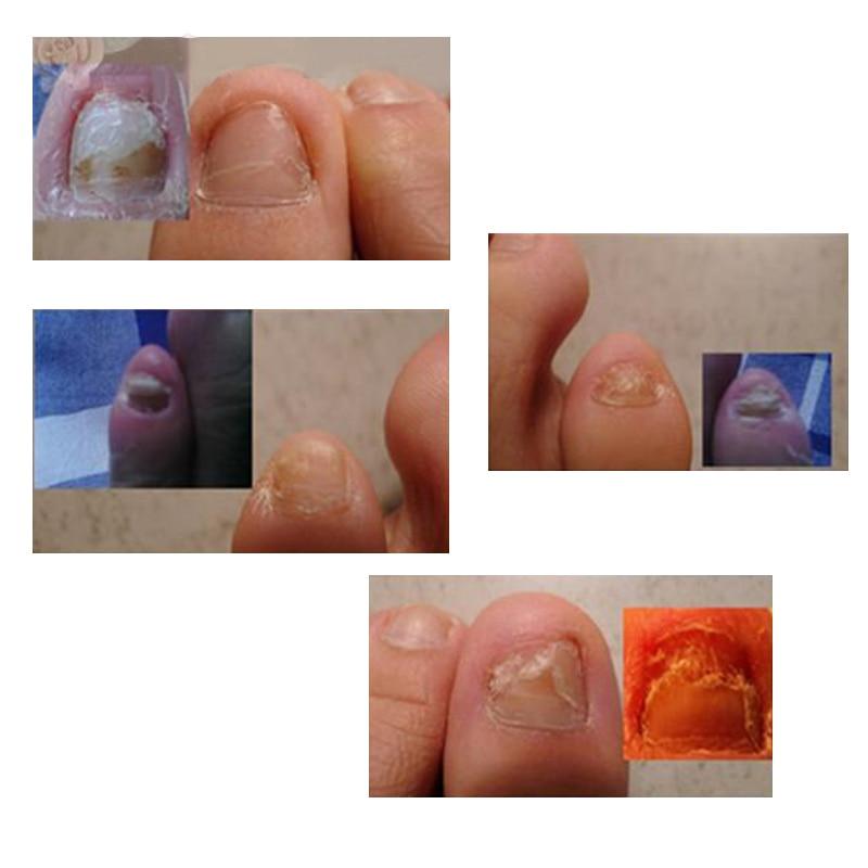 Как выглядит грибок на пальцах ног у детей