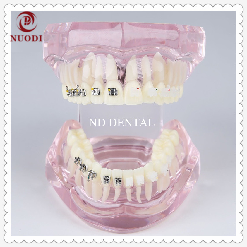 Dental traning teeth model/Tooth brushing instruction model/Orthodontic teeth Model with Metal and ceramic bracket transparent dental orthodontic mallocclusion model with brackets archwire buccal tube tooth extraction for patient communication