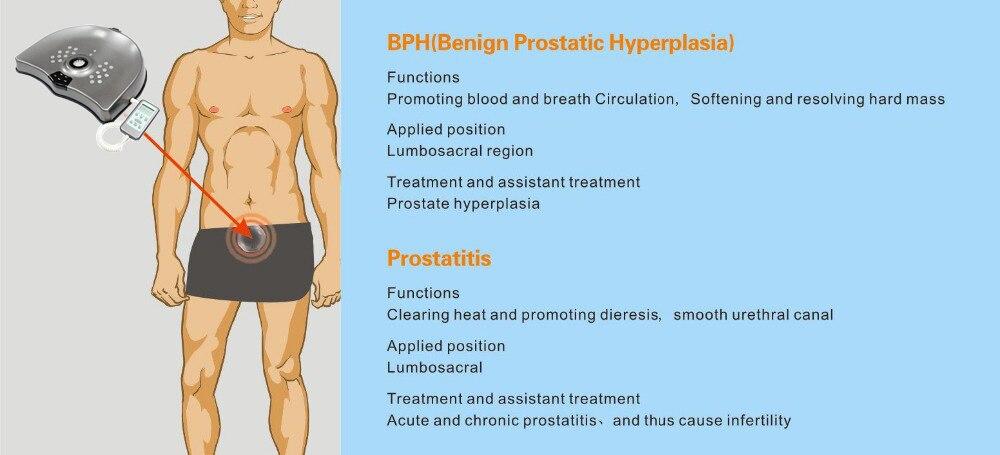 prostatite bph
