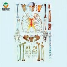 BIX-A1006 Human Scattered Bones Models WBW379