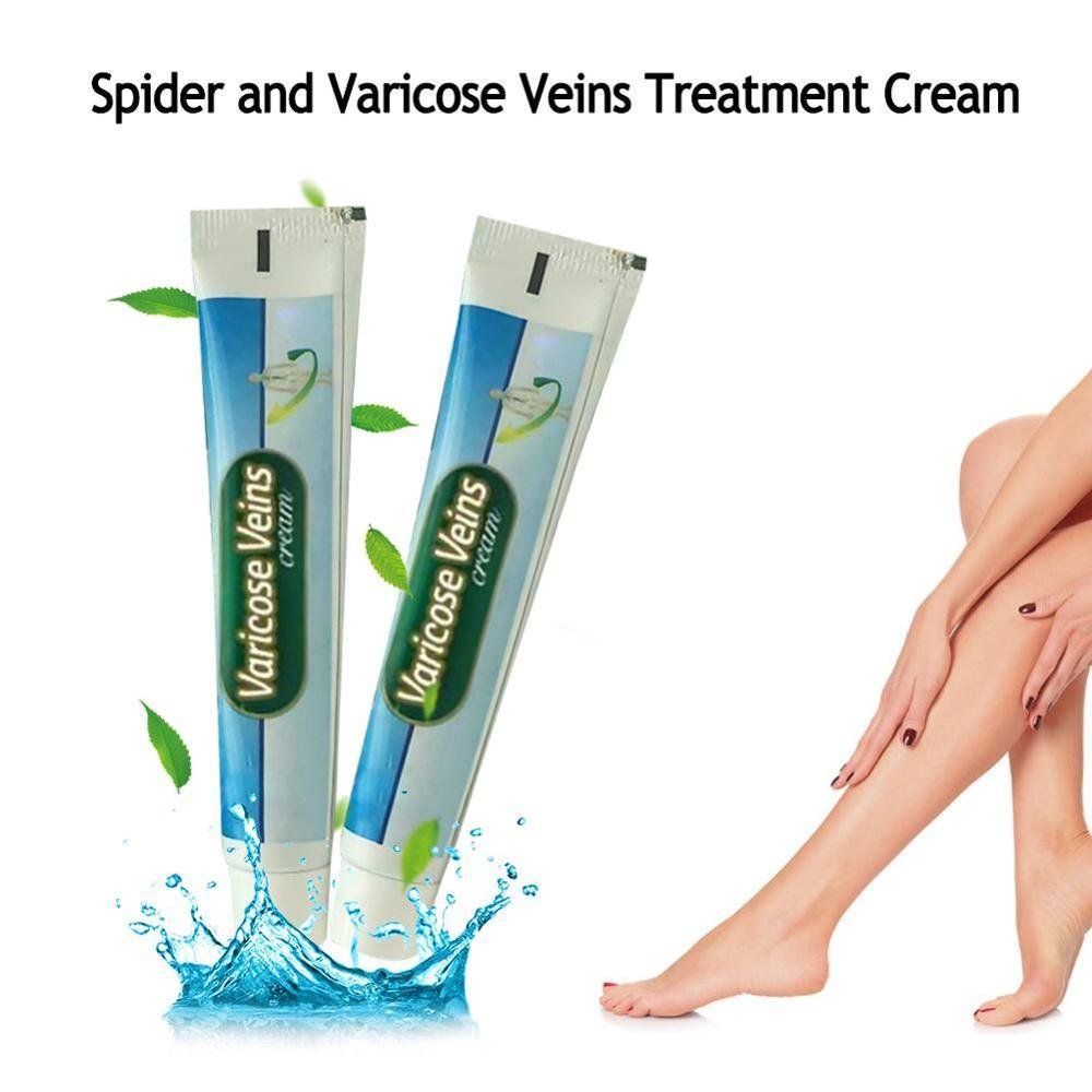 Chinese Varicose Veins Cream Ointment Vasculitis Treatment Phlebitis Angiitis Inflammation Blood Vessel Legs Ointment