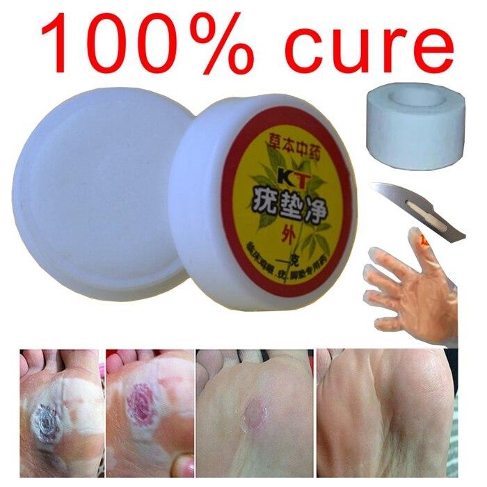 Китайски естествено лечение бум на пръста или плантарните брадавици или pomada де verruga на крака гел за отстраняване на брадавици машина