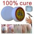 Medicina chinesa tratamento de colisão no dedo ou verrugas plantares ou pomada pomada de verruga a pé para remoção de verrugas máquina