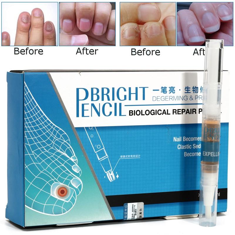 restores healthy nail
