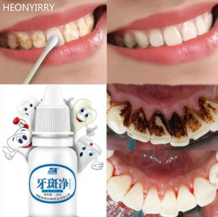 Gigi 10ml Whitening Oral Hygiene Air Pembersihan Gigi Perawatan Gigi