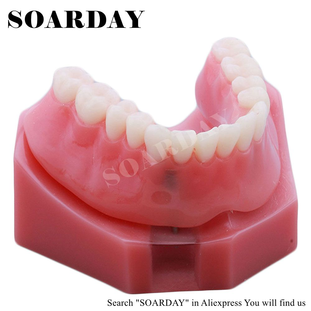 SOARDAY Overdenture inferior with 2 implants dental tooth teeth dentist dentistry anatomical anatomy model odontologia free shipping skull model 10 1 extraoral model dental tooth teeth dentist anatomical anatomy model odontologia