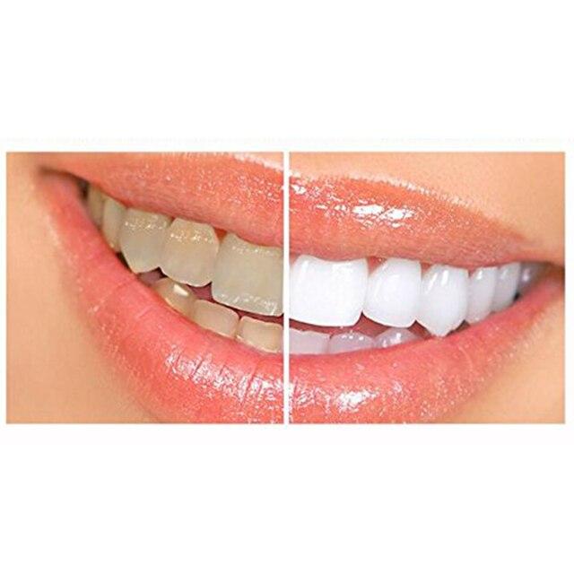 28 Pc Alat Oral Hygiene Perawatan Gigi Memutihkan Gigi Whitening