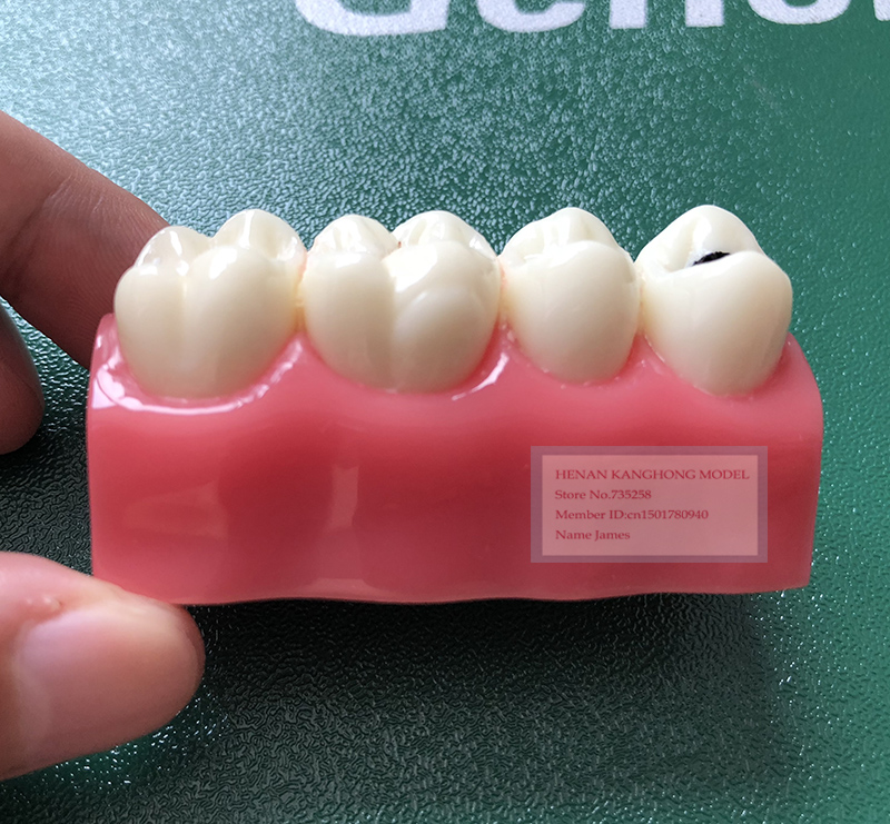 Pit and Fissure Closure Model,Early Dental Caries Model mooncase чехол